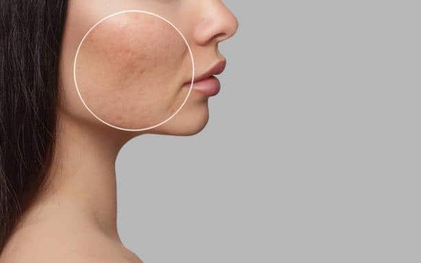 Laser skin resurfacing Lahore