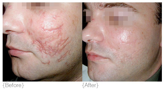 can steroid cure acne