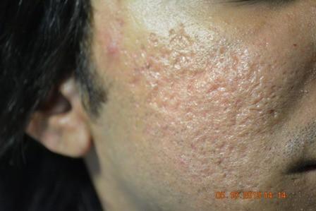 Retinol & Acne Scars LIVESTRONGCOM