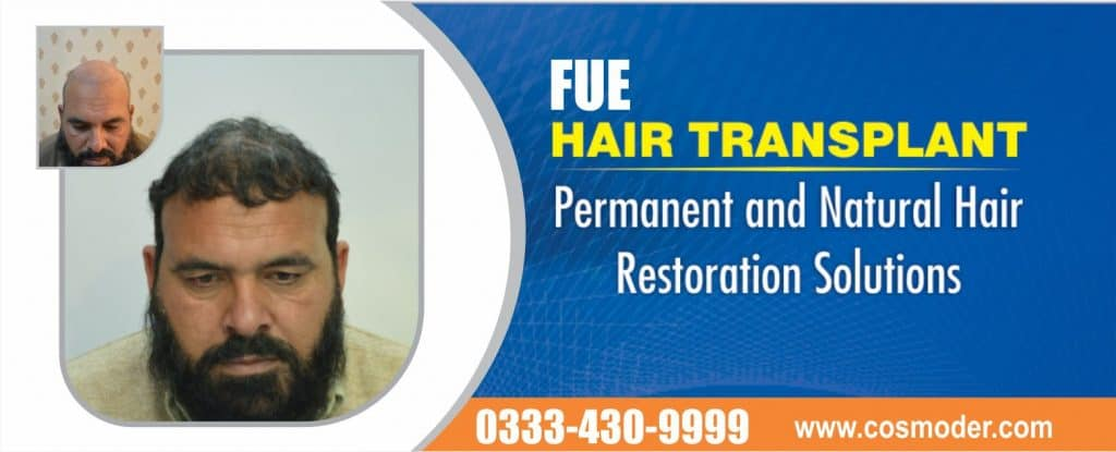 Fue hair transplant clinic pakistan