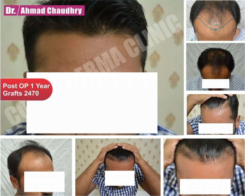 Fue hair transplant results Lahore Pakistan