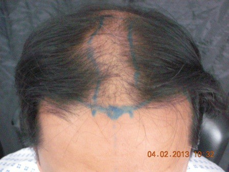 Hair transplant in Pakistan