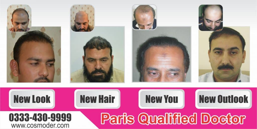 Fue hair transplant clinic Lahore Pakistan