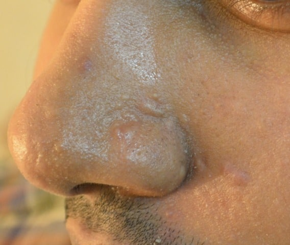 Acne scar treatment Lahore
