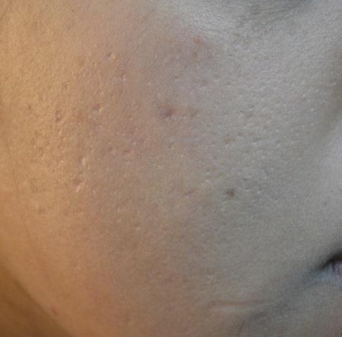 pimples scar treatment Sialkot
