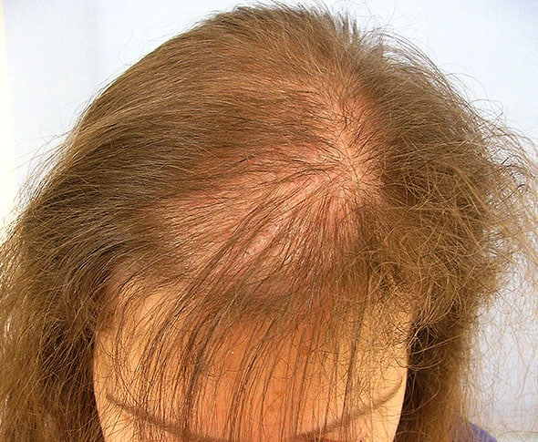 Hair loss treatment for women- Lahore