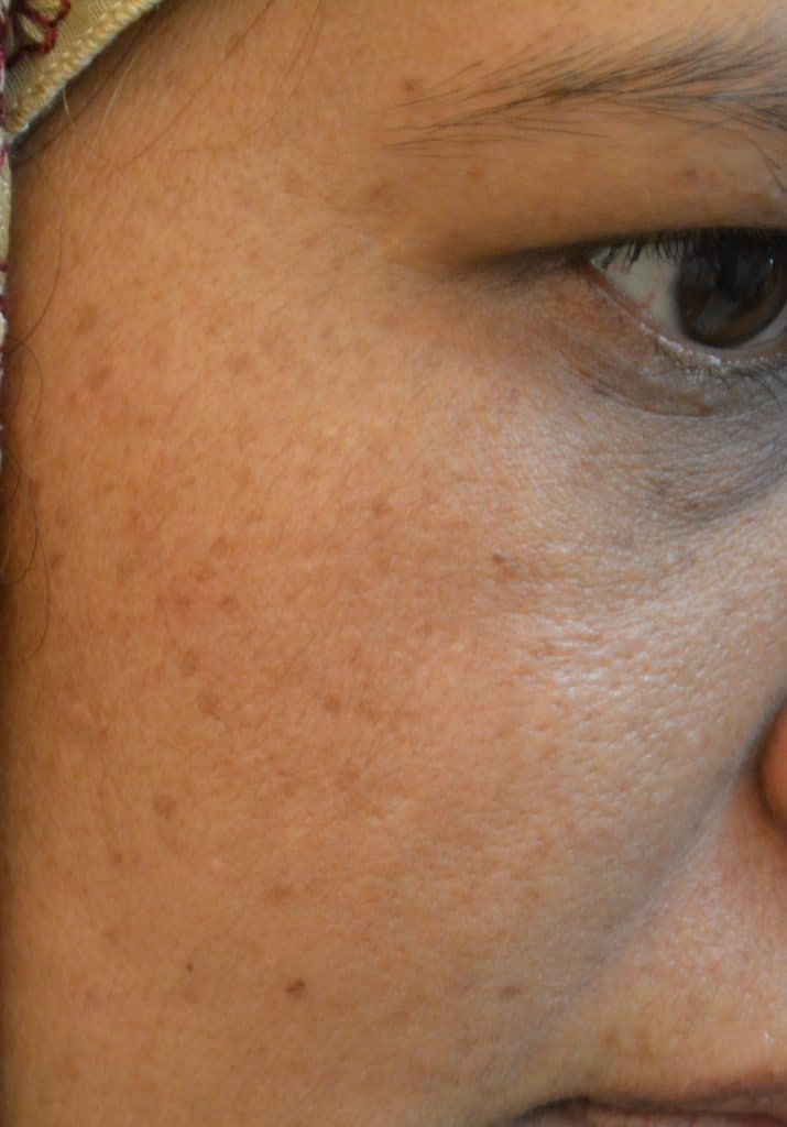 after-black-spots-laser-treatment-lahore