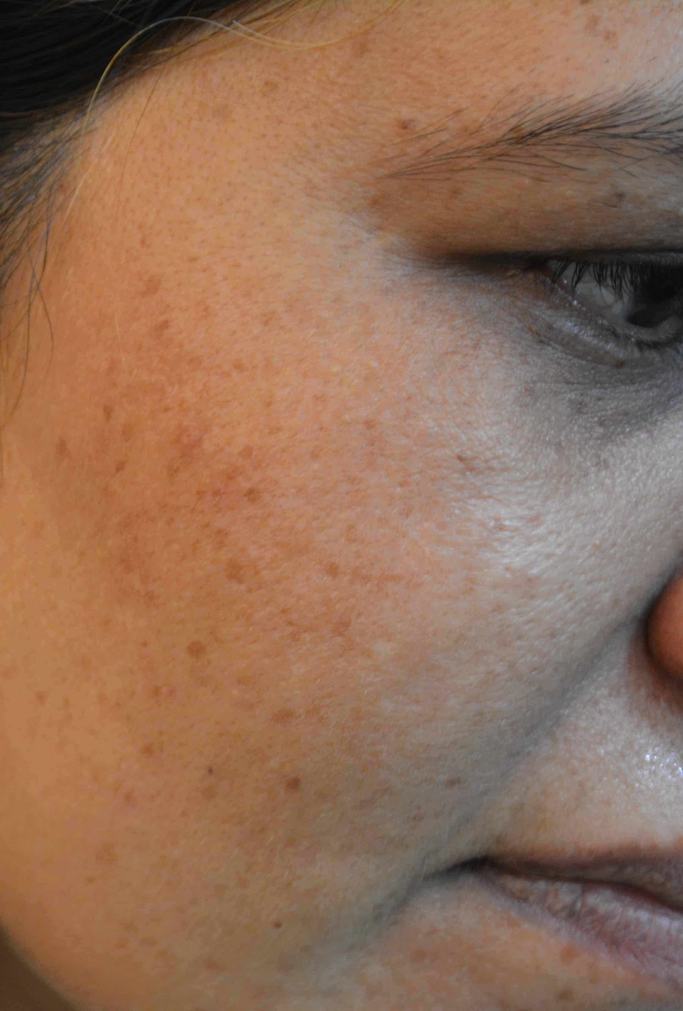 Black spots laser treatment Lahore – Prices & Cost