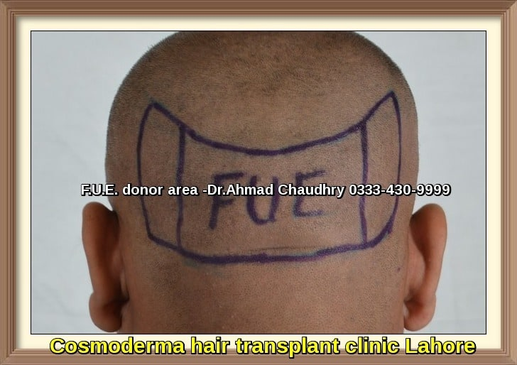 Fue donor area hair transplant Lahore