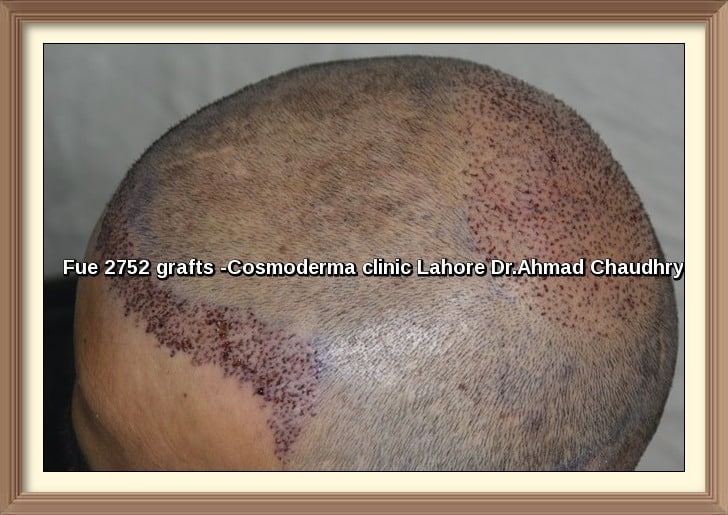 Fue hair transplant 2752 grafts before and after photos Lahore