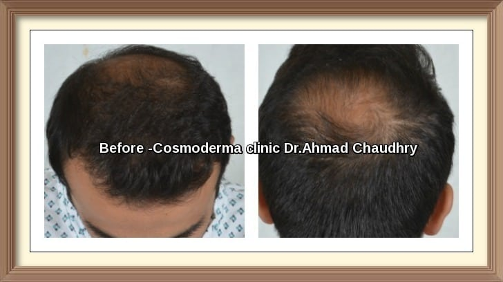 Hair Restoration before after 2752 grafts Lahore Pakistan