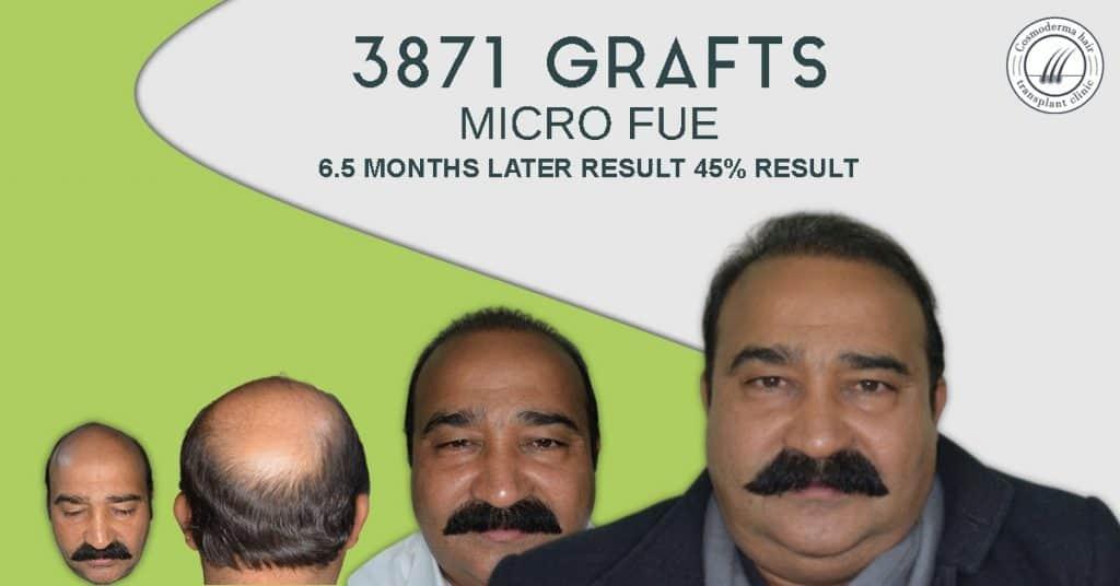 Advance baldness treatment in Lahore Pakistan
