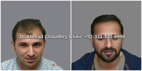 Best hair transplants in Lahore by Dr Ahmad Chaudhry 2800 grafts