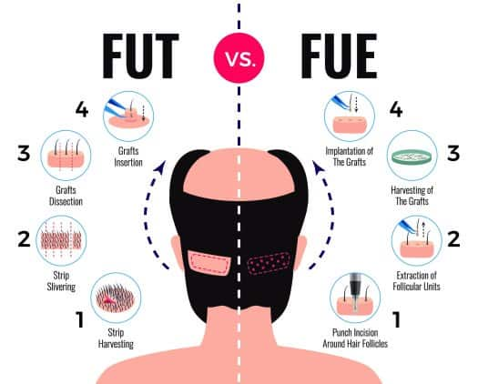 what is fue Vs FUT difference