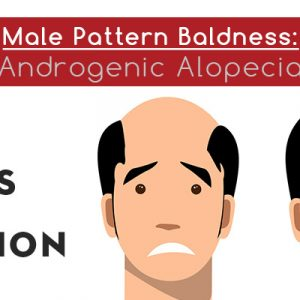 Male pattern baldness treatment in Lahore