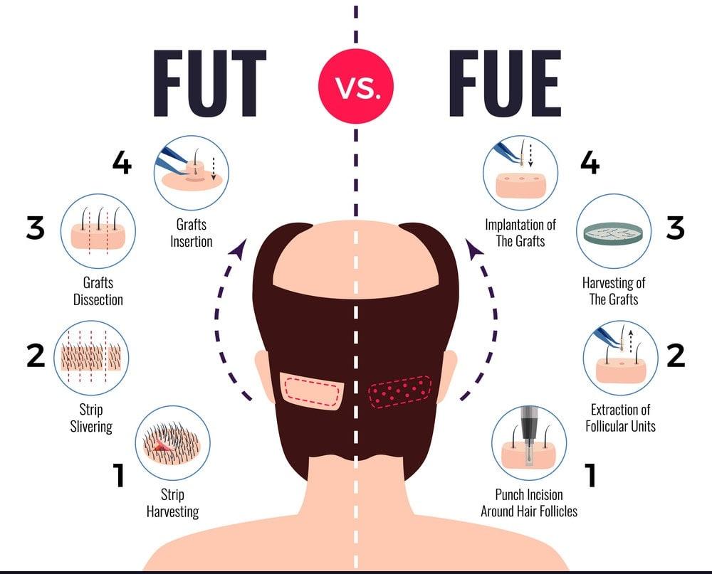 hair-transplantation-fut-vs-fue-vector-min
