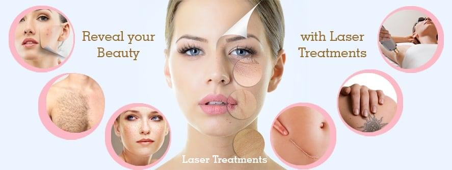Laser-Treatments Lahore Pakistan
