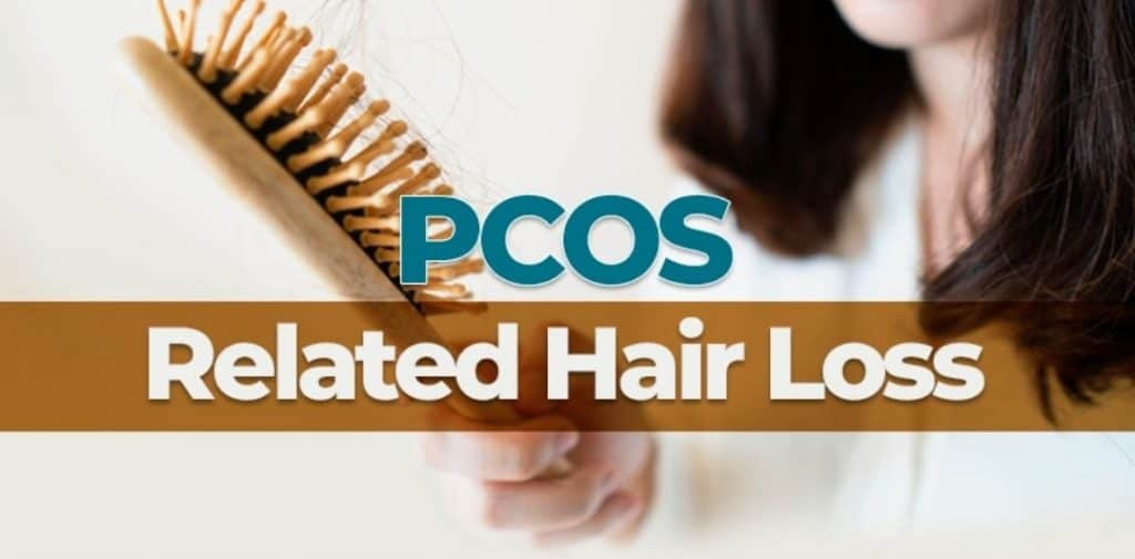 Polycystic ovary and hair loss