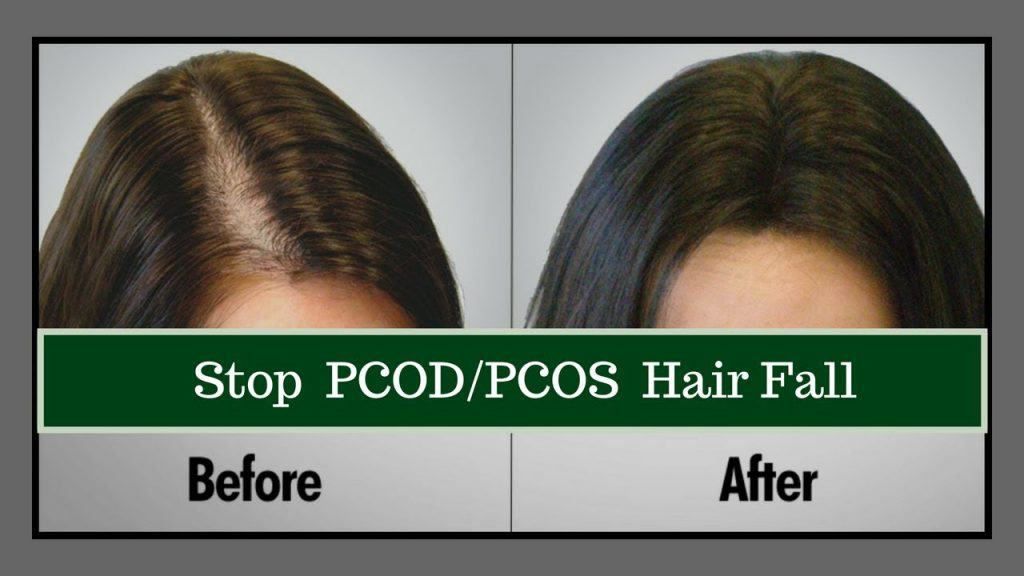 hair loss polycystic treatment lahore Pakistan