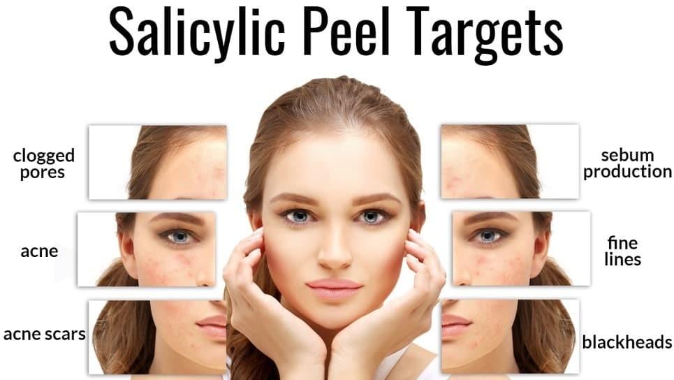 salicylic acid peel clinic Lahore