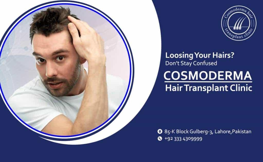 Hair loss after hair transplant