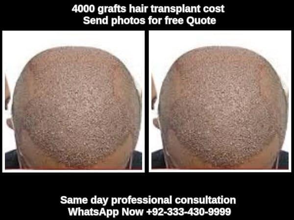 4000 grafts hair transplant cost Lahore Pakistan