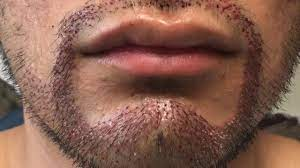 Facial hair surgery Lahore