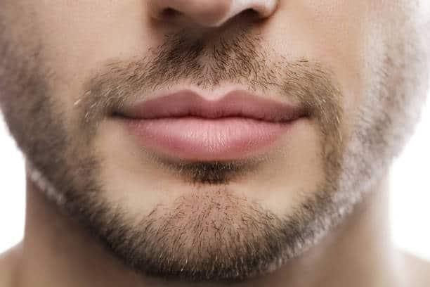Facial hair transplant results Lahore