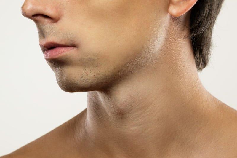 No beard hair growth