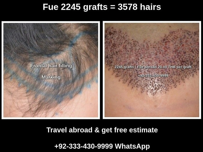 Fue 2245 grafts hair transplant before after photos Lahore